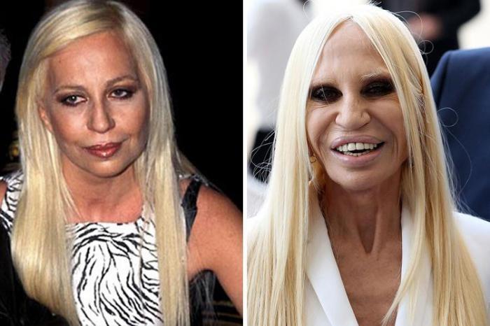 """Donatella Versace meriterebbe l'Oscar per la trasformazione """"in peggio"""". Il suo viso è cambiato radicalmente. Anche in questo caso, ci si chiede il perché di questa scelta."""