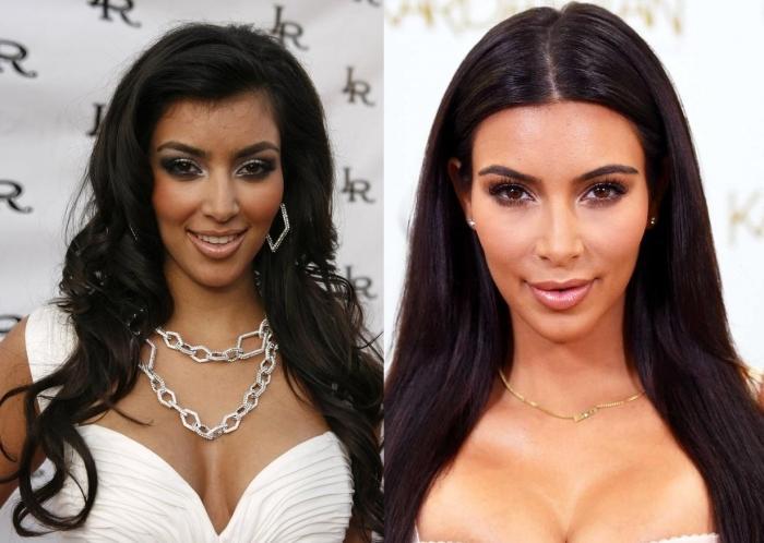 Kim Kardashian , la star dei reality non ha fatto economie, almeno in tema di chirurgia estetica: liposuzione, mastoplastica, gluteoplastica, rinoplastica e botulino.