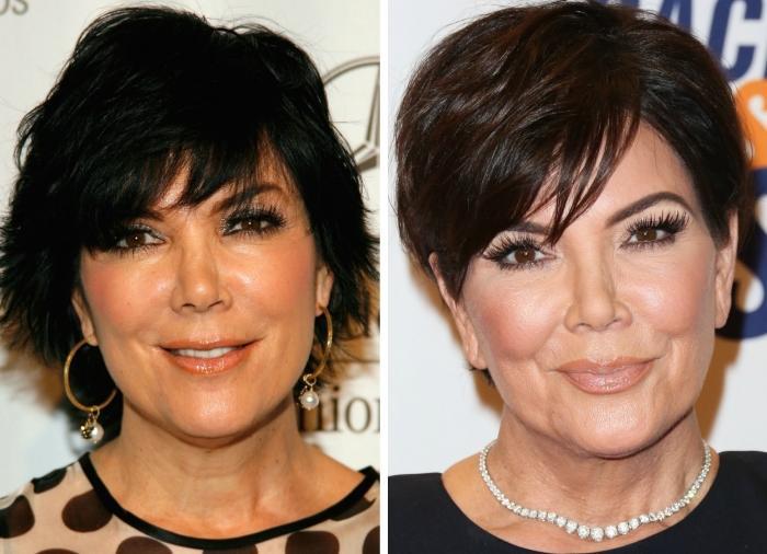"""Kris Jenner , """"momager"""", mamma e manager del clan Karadashian–Jenner, e personaggio Tv, non rinnega rinoplastica, mastoplastica additiva e la sua dipendenza dal botulino."""